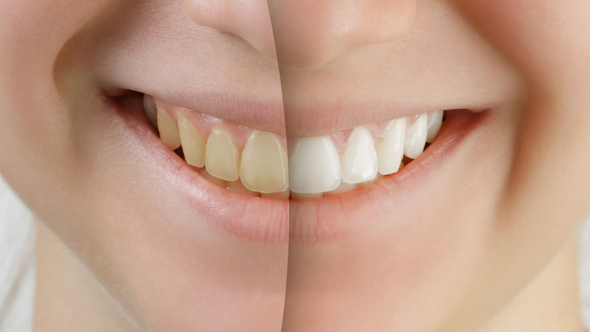 Cosmetic Dentistry in Weyburn