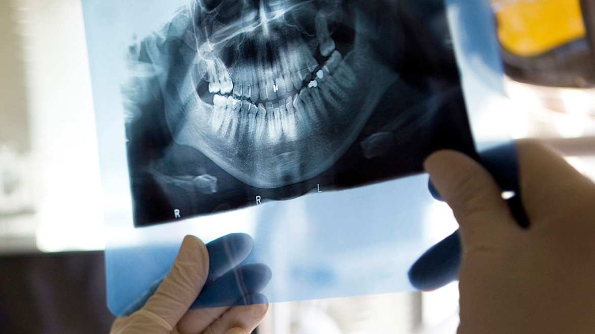 Root Canal in Weyburn