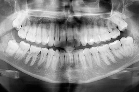 Panoramic X-Ray